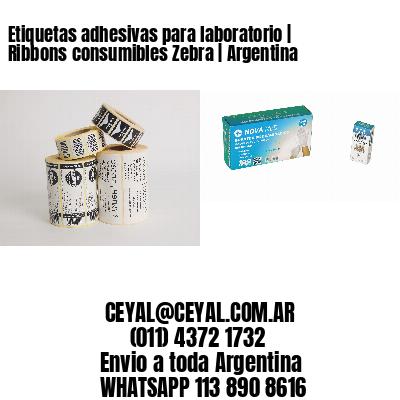 Etiquetas adhesivas para laboratorio | Ribbons consumibles Zebra | Argentina